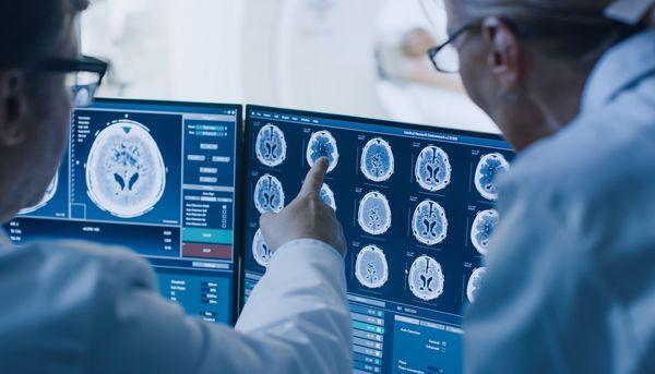 Cholesterin fördert die Bildung von Alzheimer-Plaques