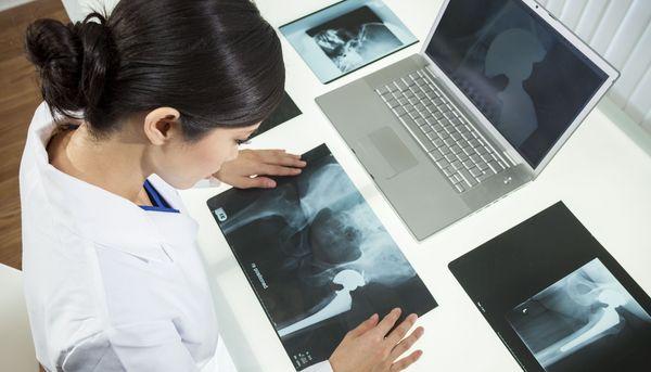 Osteoporose-Medikament schützt Hüftgelenksersatz