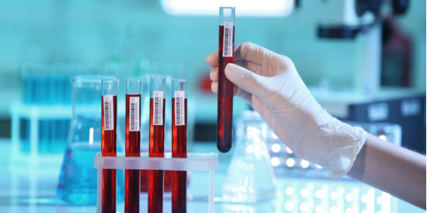 Neue Cholesterinsenker für Patienten, die keine Statine..
