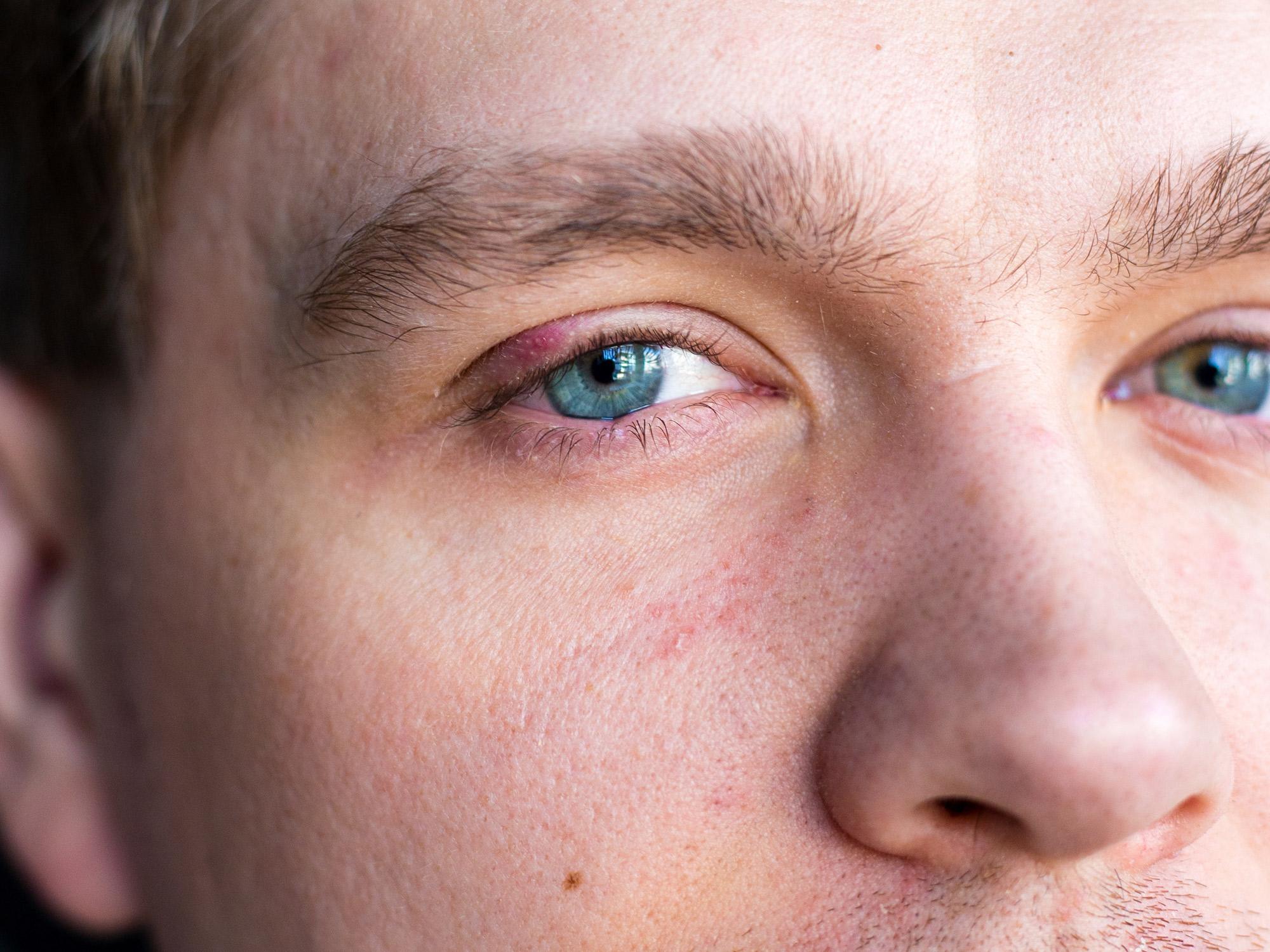 Augenwinkel entzündet innerer Verletzung innerer